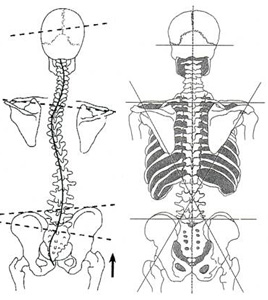 skolioza kręgosłupa rwa kulszowa przepukliny międzykręgowe
