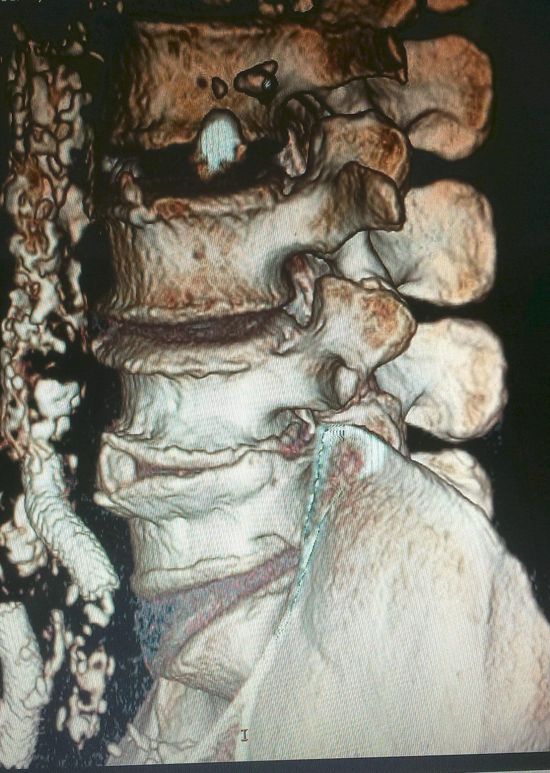 leczenie dyskopatii przepuklin krążka międzykręgowego w poznaniu