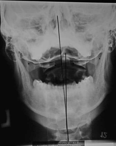 mierzenie osi symetri czaszki i kręgosłupa szyjnego