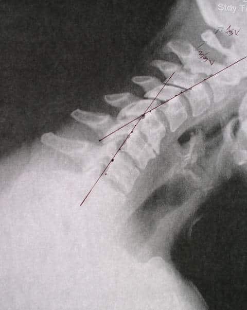rtg czynnościowe szyjnego kręgosłupa