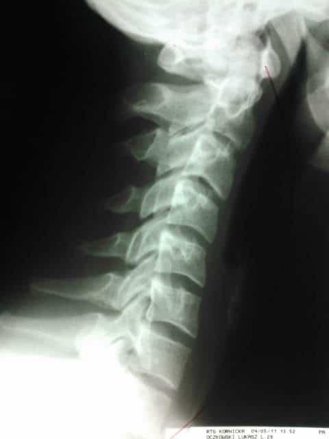 prawidłowy łuk skoliozy szyjnej i zmiany patologiczne kręgosłupa
